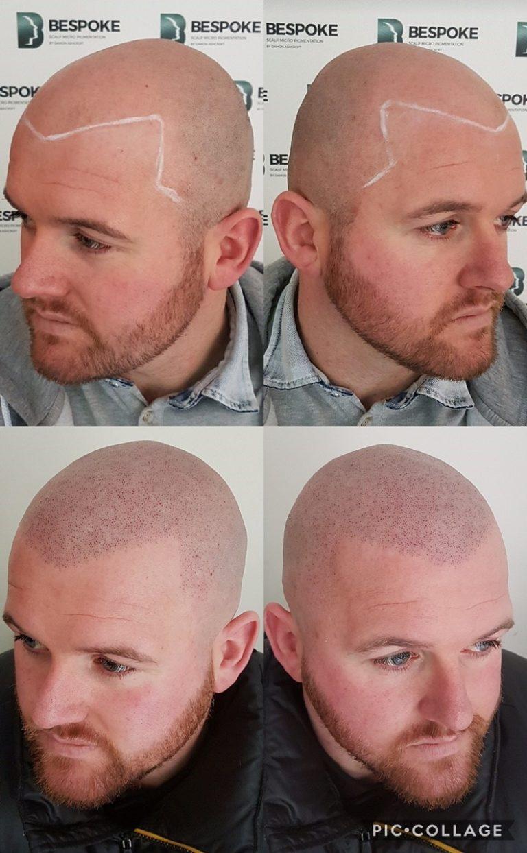 scalp micropigementation results